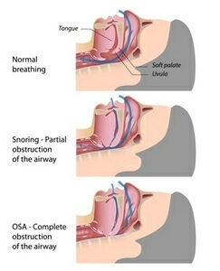 airway obstruction sleep apnea